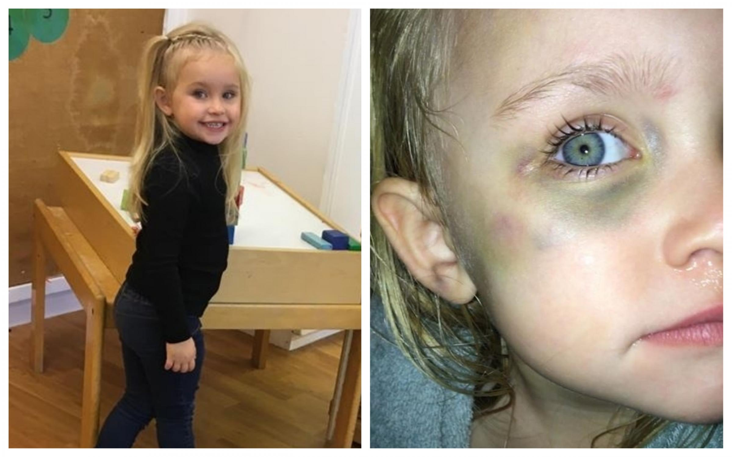 Chester nursery boss apologises after bookcase falls on toddler